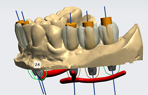 Dental Implant Process 2